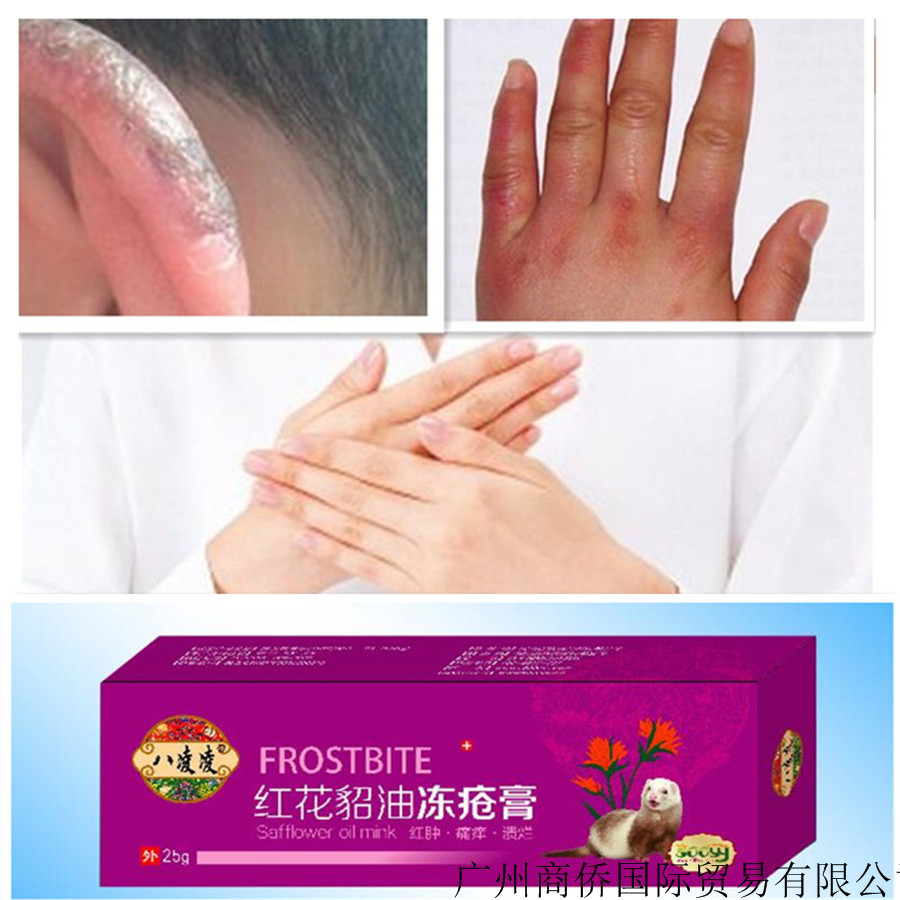 Anti-itching Frostbite Anti-Cracking Cream Hands And Feet Antifreeze Cream Frostbite Cream Antifreeze Hand Cream T494 Skin Care