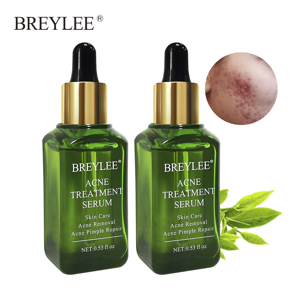 BREYLEE 2PCS Acne Treatment Serum Natural Facial Essence Acne Scar Removal Face Skin Care Whitening Repairing Pimples Remover