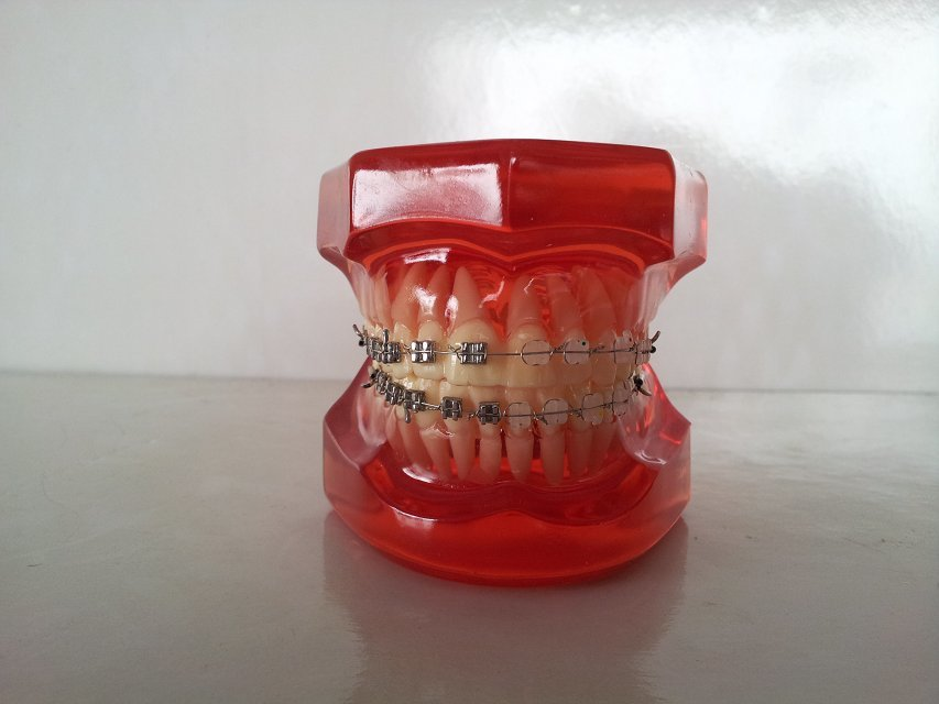 ФОТО Dental Anatomical Model Natural Size Comprehensive Orthodontic Tooth Model 28 Teeth Metal Brackets