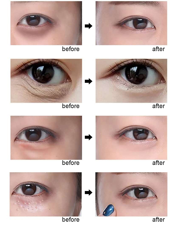 Day and Night Elastic Eye cream Skin care Facial Anti- puffiness Face Care Dark circles Anti Wrinkle Aging Moisturizing Firming 7