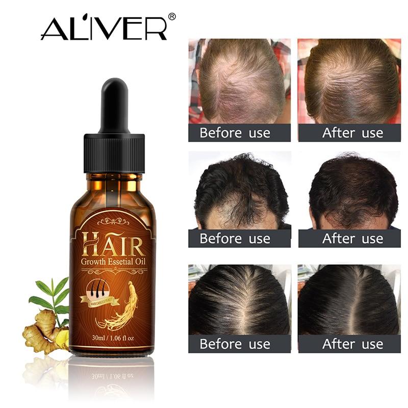 ALIVER Hair Growth Essence Hair Loss Liquid Natural Pure Origina Essential Oils 20ML Dense Hair Growth Serum Health Care Beauty