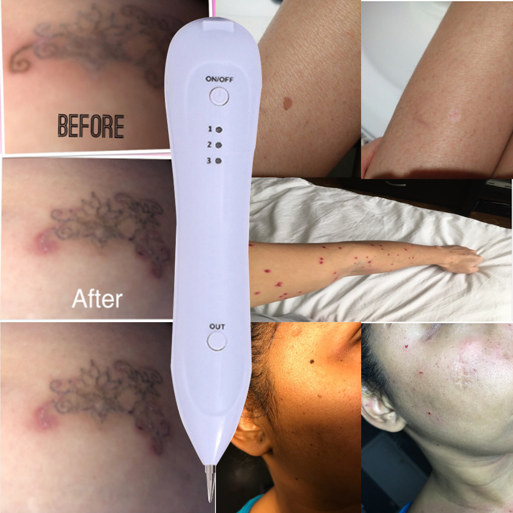Removal Beauty Apparatus Home Use