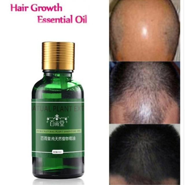 30mL Hair Care Hair Growth Essential Oil Essence Original Authentic 100% Hair Loss Liquid Health Beauty Dense Hair Growth Serum