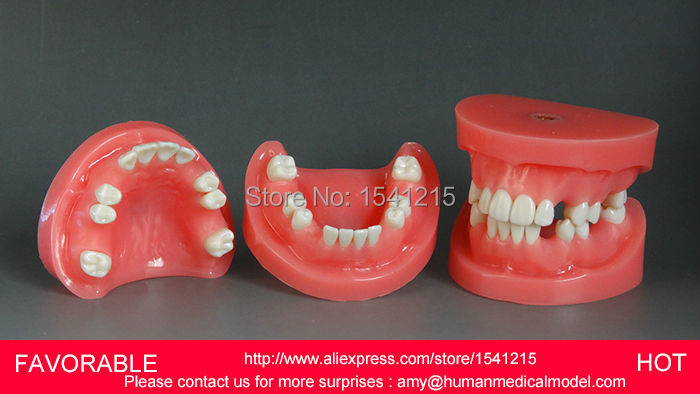 TEETH MEDICAL, DENTURES DENTAL TEACHING MODEL,ANATOMICAL ORAL MODEL,BRIDGE PREPARED FROM THE DENTAL MODEL-GASEN-DEN023 oral anatomy medical model dental caries model dental cast model oral full removable 28 teeth without tongue gasen rzkq010