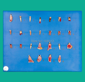 Dental Diseases Model, Dental pathology series model, teeth disease model