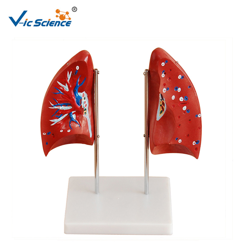 Advanced PVC Educational Medical Human  Anatomical Lung Model 4parts for Teaching Students|Medical Science| |  - title=