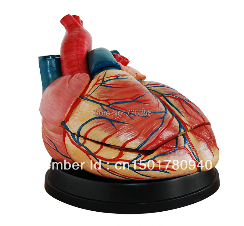 Advanced Cardiac Enlargement Model, Human Heart Model,Heart Amplification Model human larynx model advanced anatomical larynx model