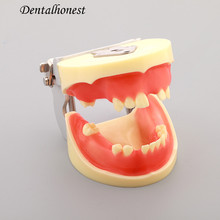 Dentl Implant Practice Model Dental Teeth Models M2002 dental teeth model comprehensive periodontal pathological disease model for medical science study teaching communication