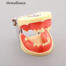 Dentl для тренировки имплантации модель Φ m2002