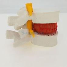 Anatomical Herniated Lumbar Vertebrae Disc Prolapse Model Human Medical Anatomy High Quality PVC