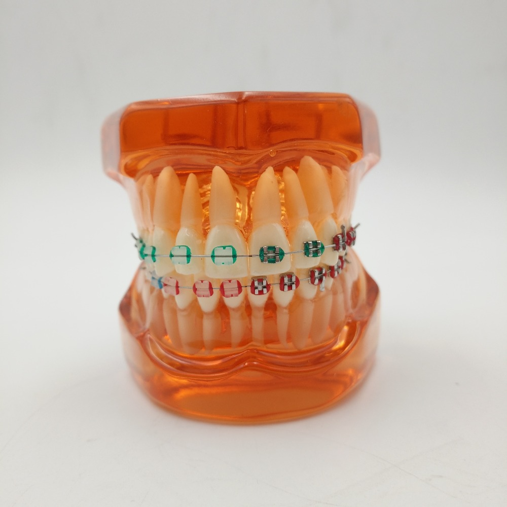 Good Quality Teeth model With metal & ceramic brackets Irregular tooth Ortho Metal dentist patient student learning model 1pcs ga 8knxp rev1 0 875 selling with good quality