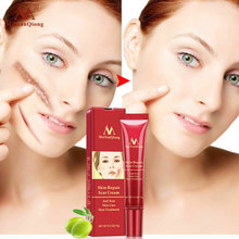 Acne Scar Removal Cream Skin Repair Face Spots Treatment Blackhead Whitening Anti Stretch Marks 15g !