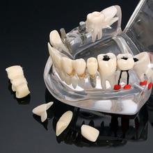 Heißes Zahnimplantat-Krankheits-Zahn-Modell mit Wiederherstellungs-Brücke Malocclusion-kieferorthopädisches Modell für die medizinische Wissenschaft zahnmedizinisch