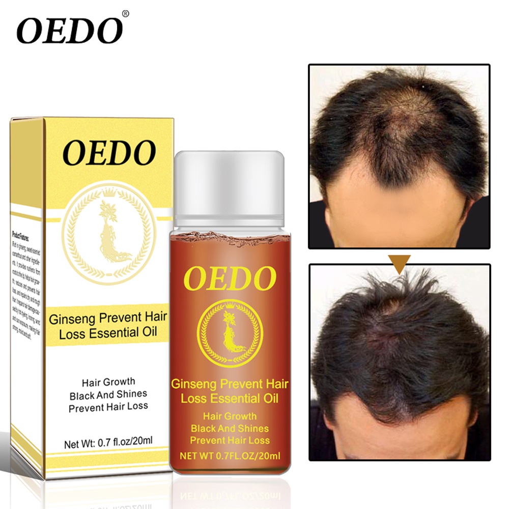 20ML OEDO Ginseng Prevent Hair Loss Products Essential Oil Hair Growth Black and