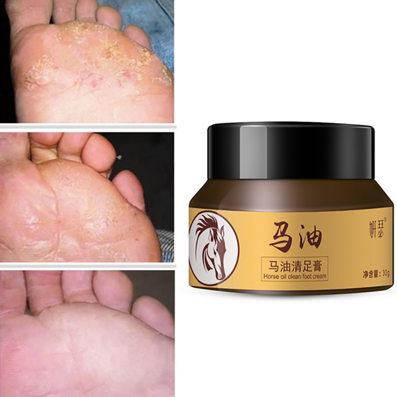 Skin Care Tools Foot Care Tool Lower Price with 30g Natural Plant Extracts Repair Feet Skin Foot Care Cream Exfoliating Anti Bacteria Feet Itch Blister Peeling Feet Ointment