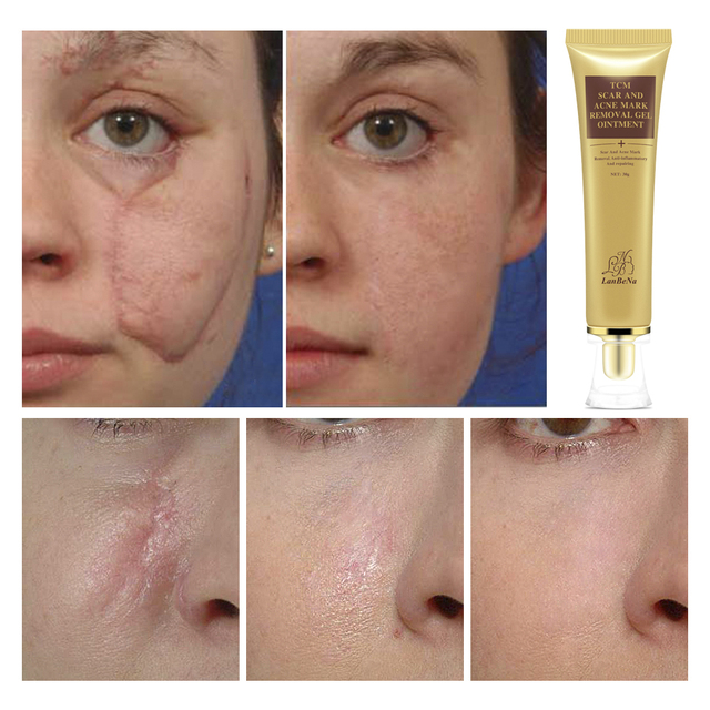 LB Acne Scar Removal Cream