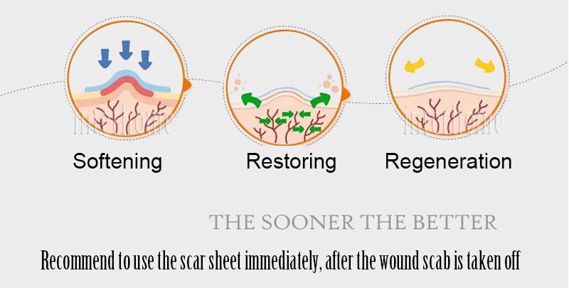 Self-adhesive-silicone-scar-paste(12)