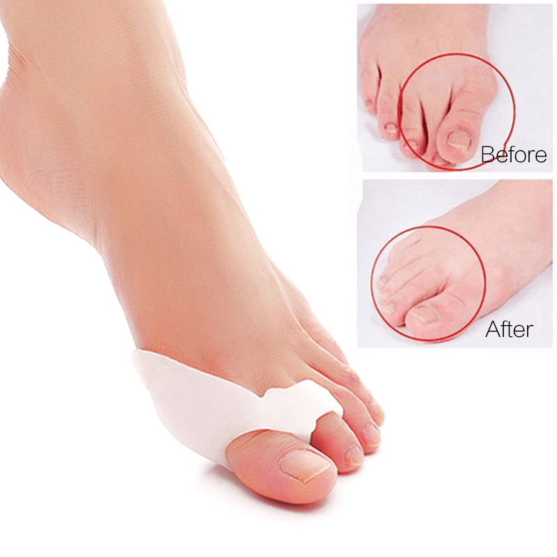 1Pair Hallux Valgus Corrector Bone Thumb Orthotic Orthopedic Silikon Big Toe Separator Bunion Corrector Pedicure Foot Care Tool