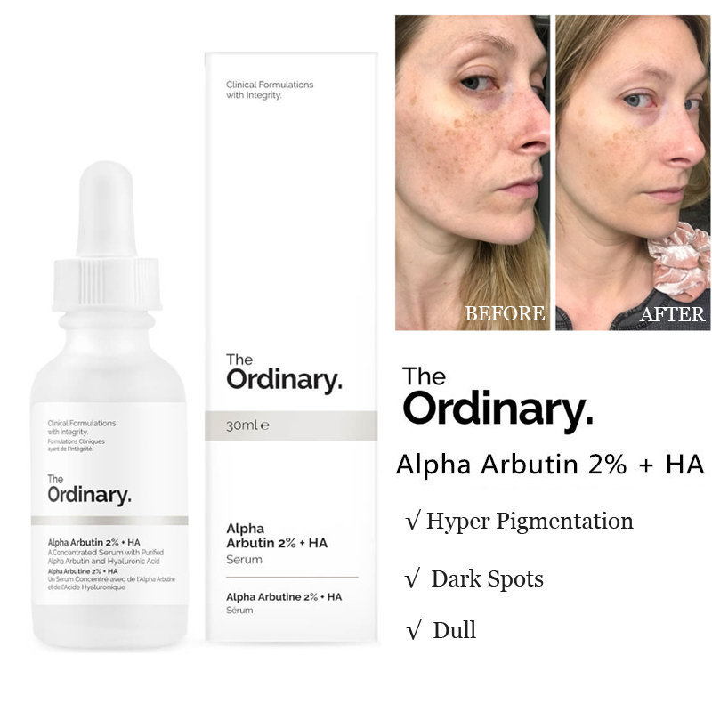 The Ordinary Alpha Arbutin 2% + HA 30ml Concentrated Whitening Face Serum Remove Dark Spots Freckle Hyper Pigmentation