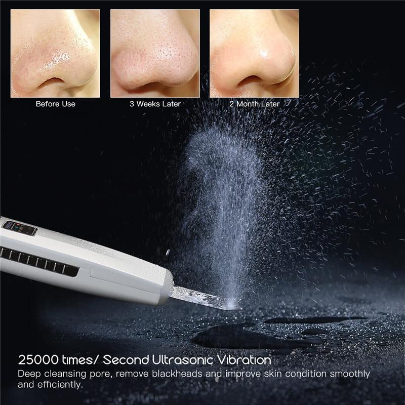 Ultrasonic Ion Skin Scrubber Skin Deep Clean Exfoliating Peeling Blackhead Removal Face Pore Cleaner + Facial Steamer Sprayer 39