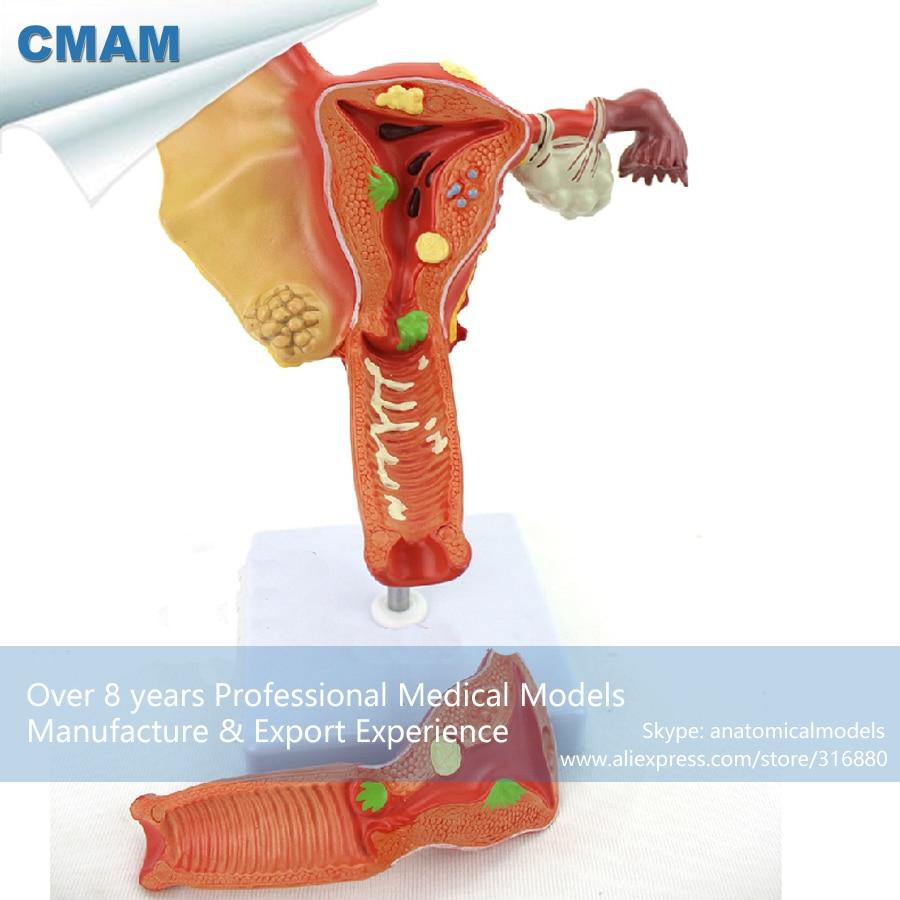 12473 CMAM-ANATOMY35 Female Uterine Pathological Model female pelvic fetal model nine months of pregnancy fetus uterine embryo development model fetal development model gasen sz017
