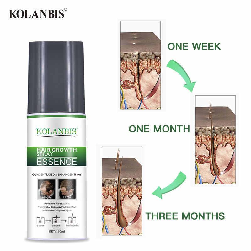 שיער אובדן טיפול ערכת שמנוני צמיחה מהיר סרום שיער אובדן שמפו גברים התקרחות עיבוי מוצר התקרחות שיקום אנטי סתיו