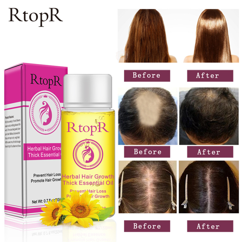 RtopR Hair Growth Anti Hair Loss Liquid Promote Thick Fast Hair Growth Treatment Essential Oil Health Care Beauty Essence TSLM1