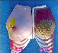 Female Breast Model Health and Sick Breast Anatomy Model Female Genital Anatomical Model Pathological Breast Medical Teaching
