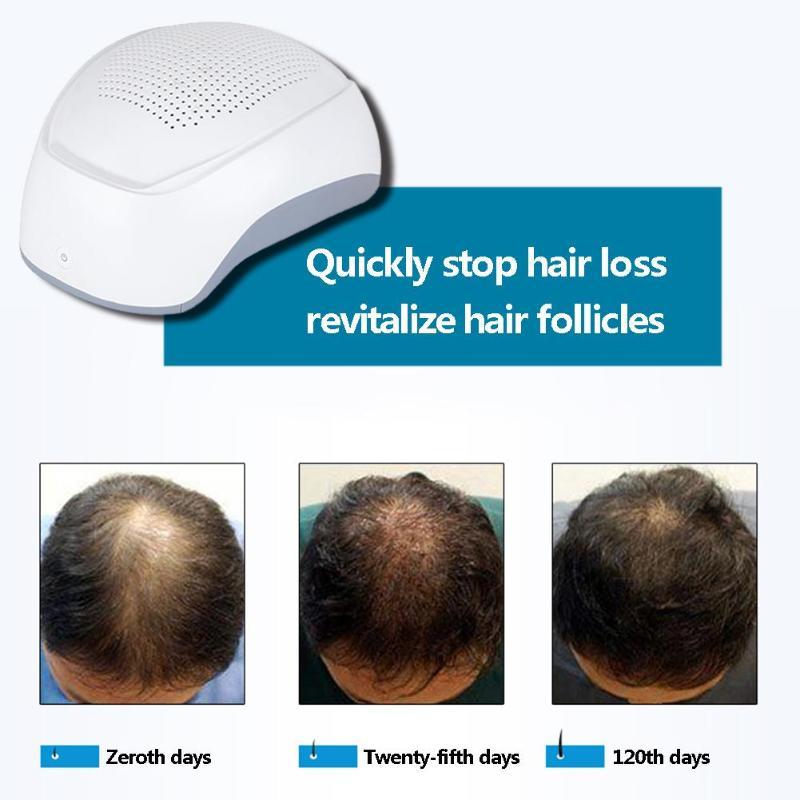 Traitement de perte de cheveux de dispositif de casque de croissance de cheveux de thérapie de Laser de 650nm (gris)