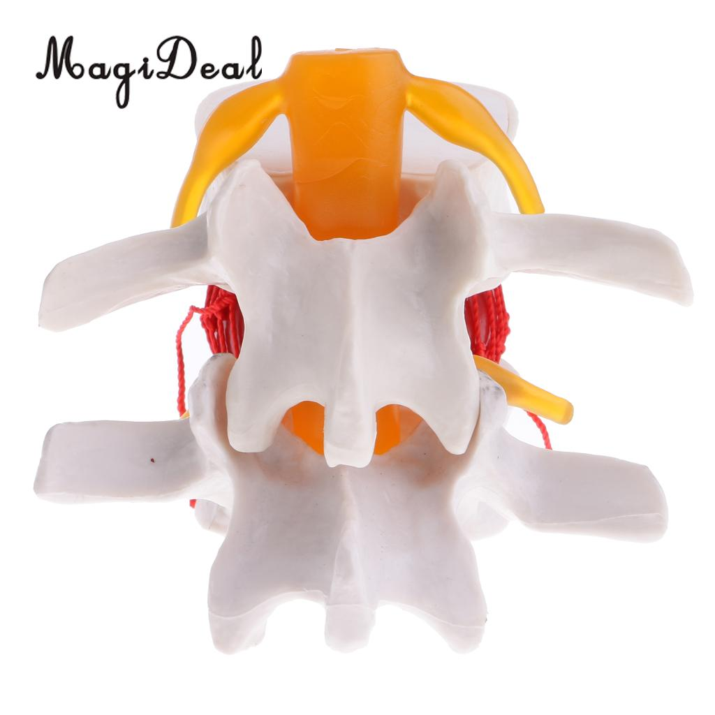 MagiDeal PVC Human Spine Lumbar Intervertebral Disc Protrusion Model Magnification 2x for School Lab Medical Study Kit