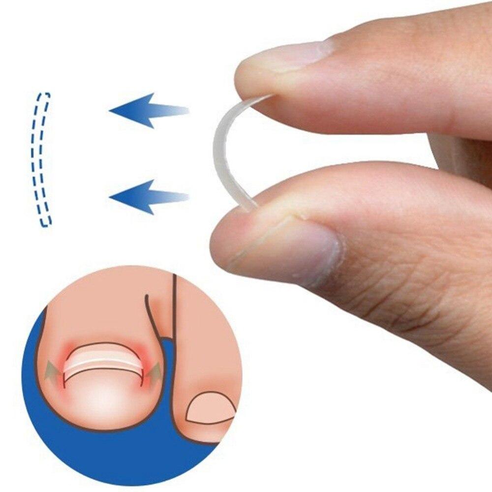 10Pcs Ingrown Toenail Pedicure Tool Straightening Clip Toenails Correction Elastic Patches Toenail Treatment Foot Nail Care