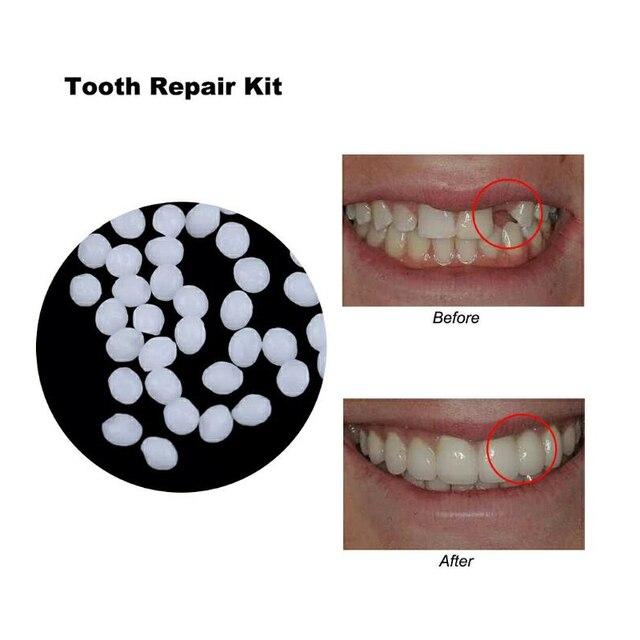 10g dientes pegamento sólido temporal dentadura adhesivo lagunas Kit de herramienta de la reparación Dental Blanqueamiento Dental herramientas