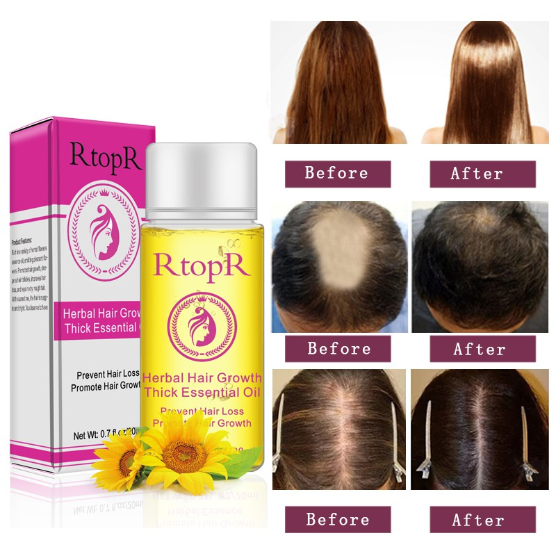 20ml Herbal Hair Growth Thick Essential Oil Hair Growth Products Faster Grow Pre