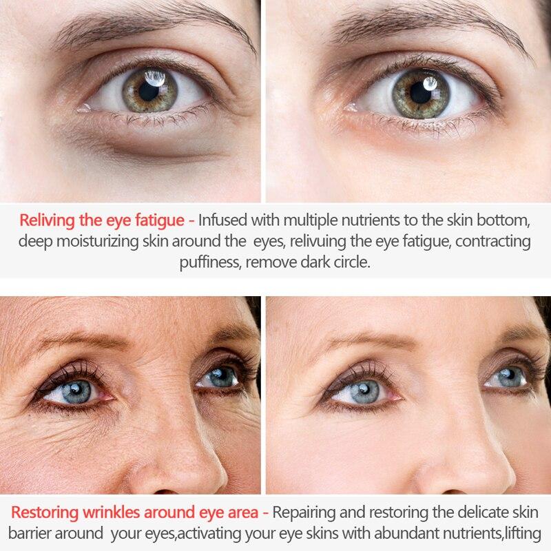 ROREC Hyaluronic Acid Anti Aging Against Puffiness Eye Serum Anti-Wrinkle Snail Collagen Remover Dark Circles Eye Cream Care 20g 1