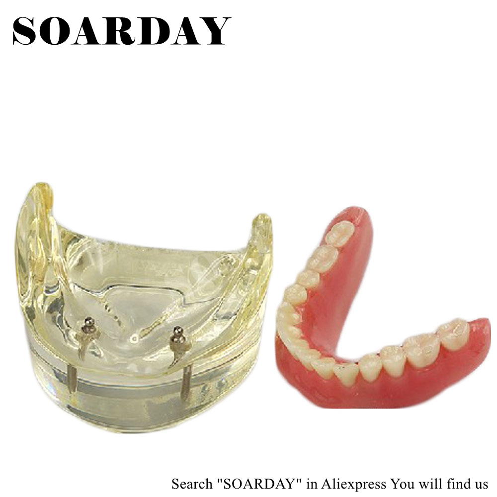 SOARDAY Dental Lower Removable Overdenture Inferior met 2 implantaten - School en educatieve benodigdheden - Foto 2