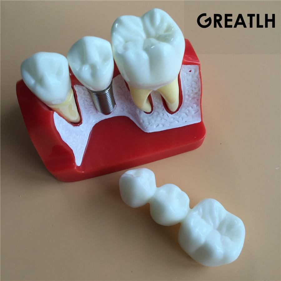 Dental Teach-Study Model Implant Analysis Crown Bridge Demonstration Teeth Model dentoform macro implant crown bridge demostratation teeth tooh typodont teeth model