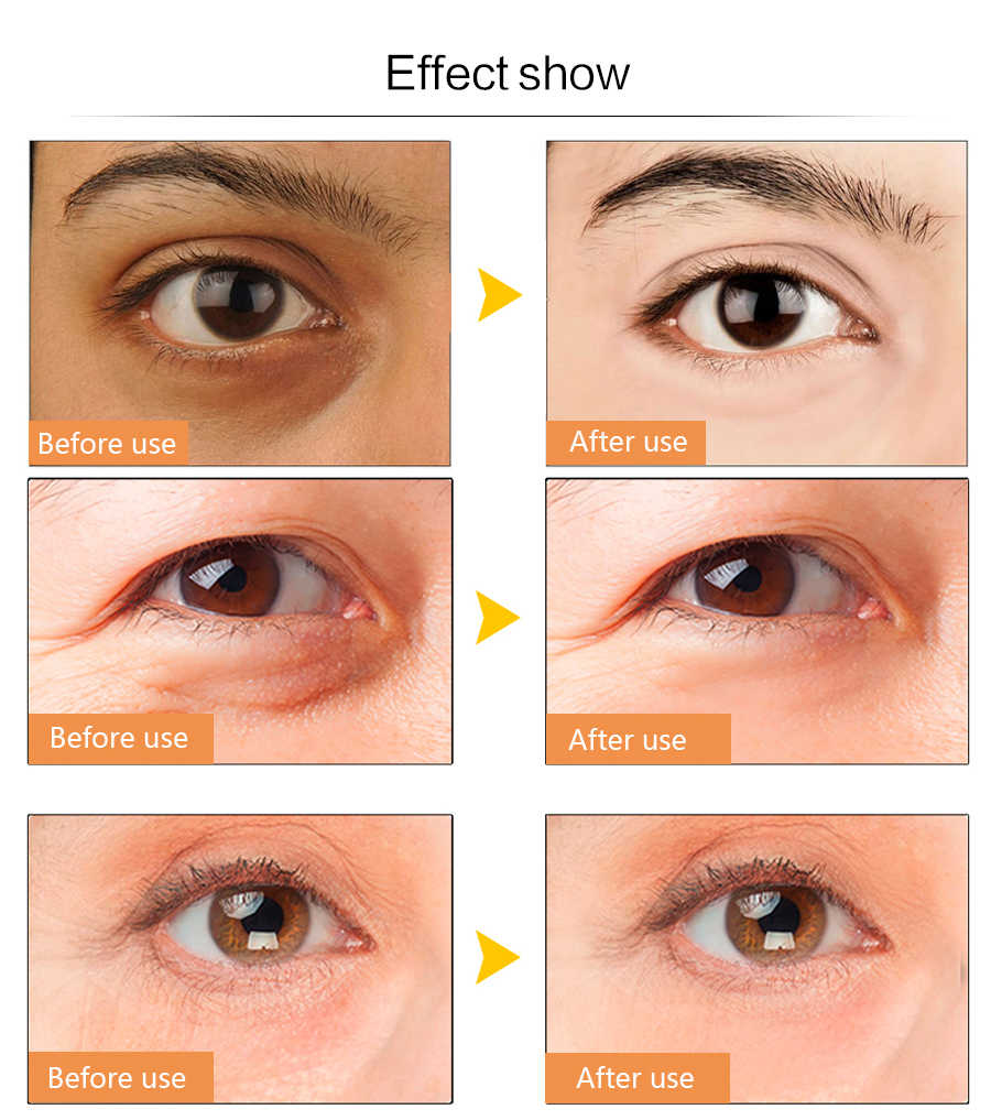 Efero 10packs Eye Cream Anti Wrinkle Remove Dark Circles Eye Bags