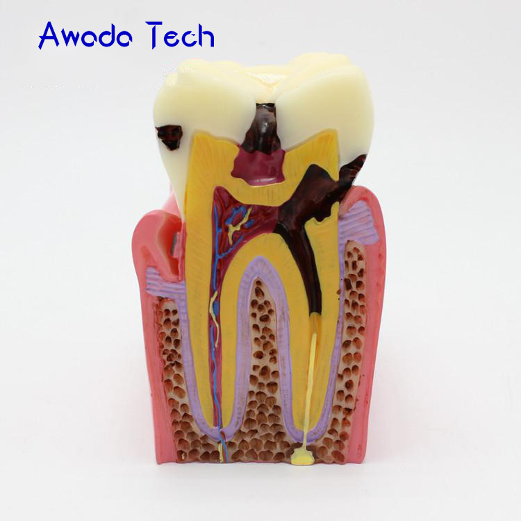 AwadaTech 6X caries comparison model, tooth decay model,Dentist for Medical Science Teaching Teeth Whitening 2018 new denture teeth model 6x caries comparison model tooth decay model dentist for medical science teaching