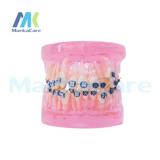 Manka Cuidar-28 pcs Dente, metade da pena do metal & meio bracket cerâmica Modelo Oral Dente Dentes Modelo