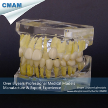 CMAM-DT1501 Angle's Classification Method Transparent Resin Malocclusion Model