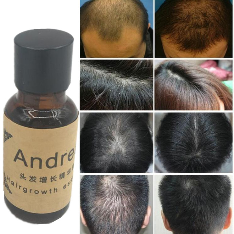 Andrea Hair Growth Ginger Oil Natural Plant Essence Faster Grow Beard Eyelashes Hair Tonic Shampoo Hair Loss Hair Care Serum