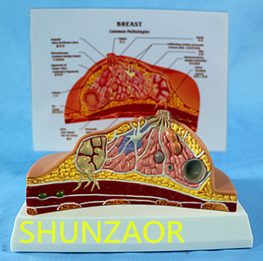 SHUNZAOR Table-type breast lesion model breast lesions anatomical structure model breast pathological lesion of doctor patient communication model