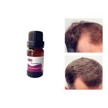 Garlic Oil Hair Care Treatment Essential oil Fast Powerful Growth Liquid Loss Serum Repair Keratine Herbal 10ml