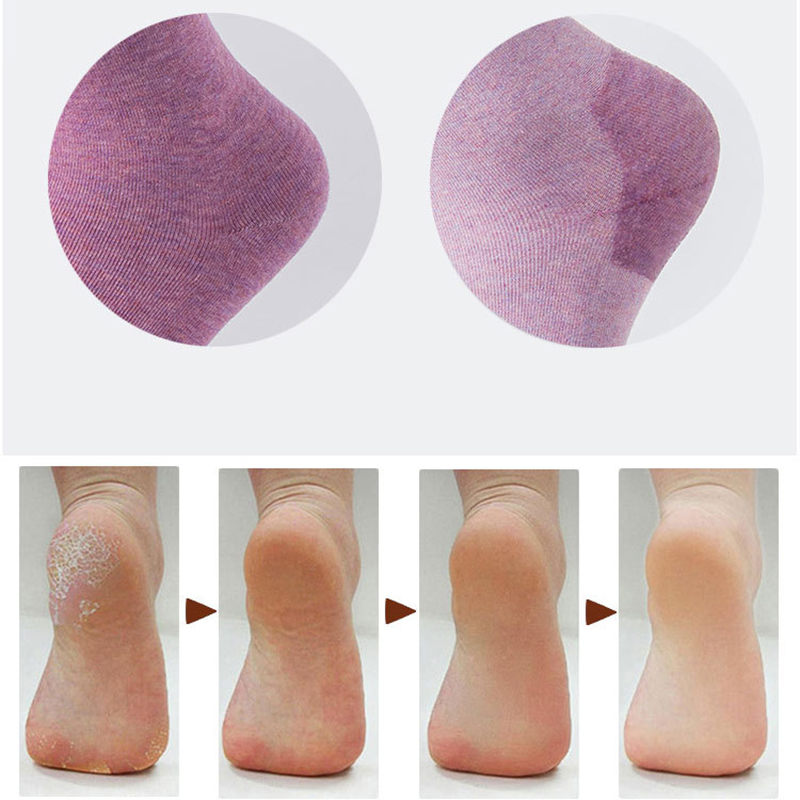 New 1 Pair Winter Cracked Heel Gel Socks Moisturizing Silicone Baby Skin Care Anti-slip Maintenance Foot Spa Tools