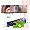 psoriasis relief ointment spray combination from chinese psoriasis treatment Multi-Symptom Psoriasis Relief cream