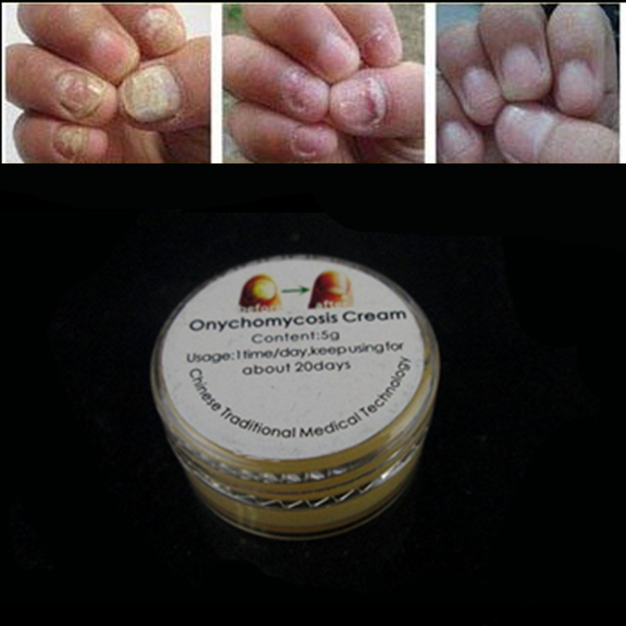 New 3ml Chinese Traditional Nail Onychomycosis Treatment care liquid ...