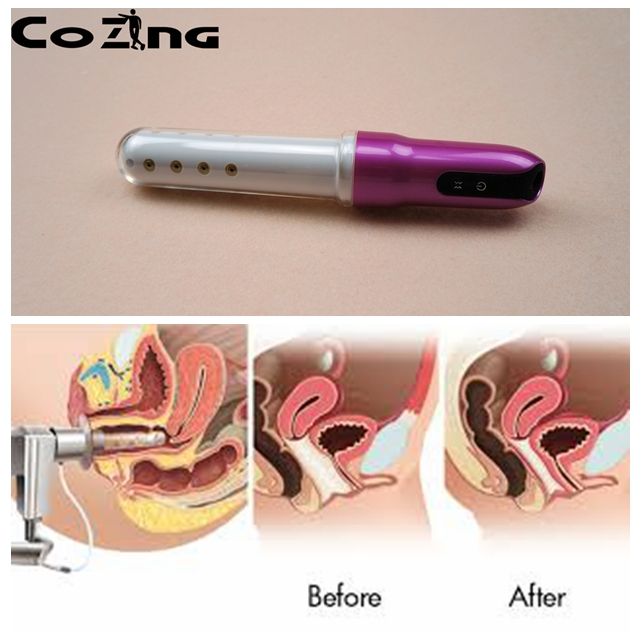 No pain  laser therapy  gynecological vaginitis  therapy with vaginal insertion gynecological vaginitis  therapy device альбом cephalotripsy uterovaginal insertion of extirpated anomalies