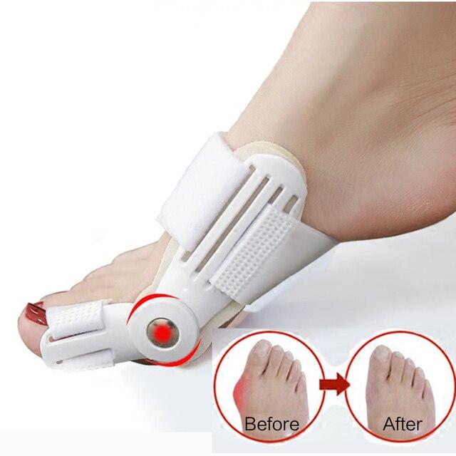 1 par Corrector de Bunion separador de dedo del pie Protector de pulgar de hueso grande Hallux Valgus corrección de la pedicura del pulgar herramientas de cuidado de los pies