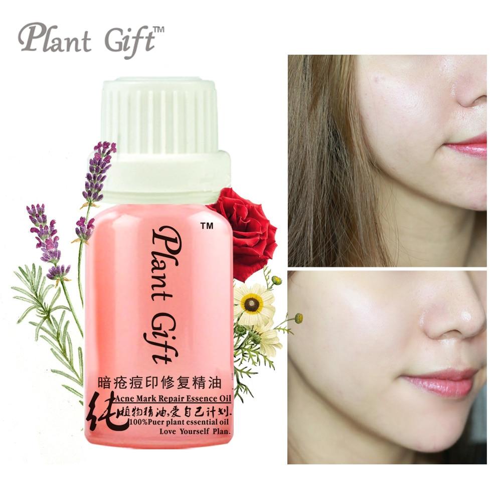 100% compus esențial de ulei de acnee marcă de reparare de ulei de esențe Pimple de sedare, anti-inflamator, anti-acnee India Lavandă, trandafir