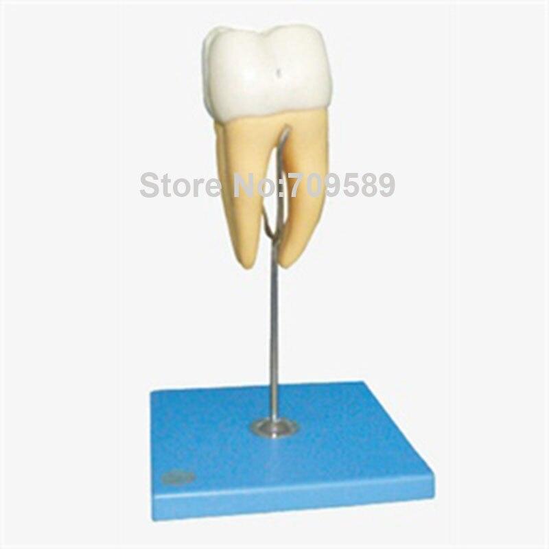 Molar Model,  16 times Enlarged Molar Teeth Model lower molar with one root model molar teeth model dental model